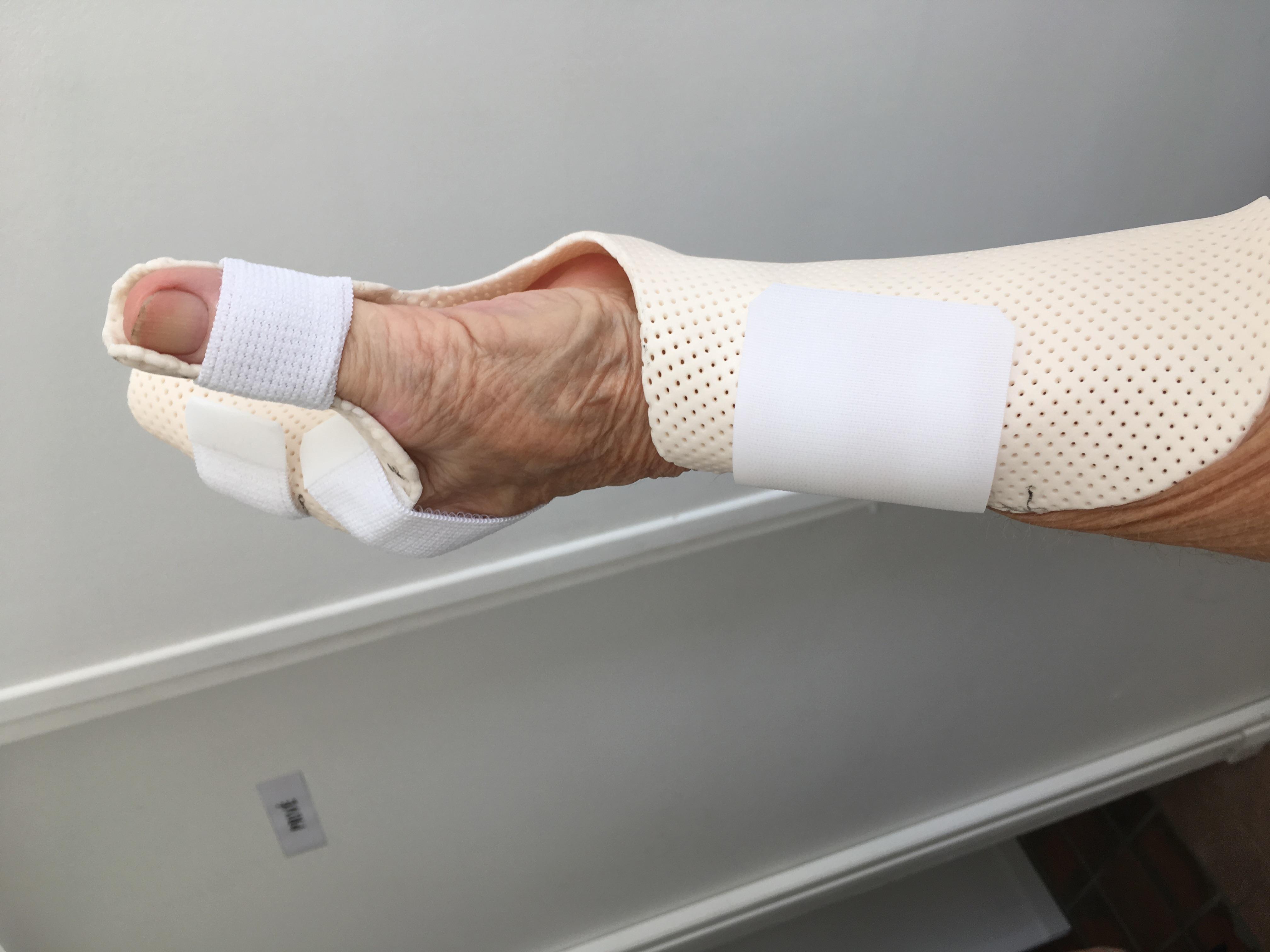 Orthèse de main 2