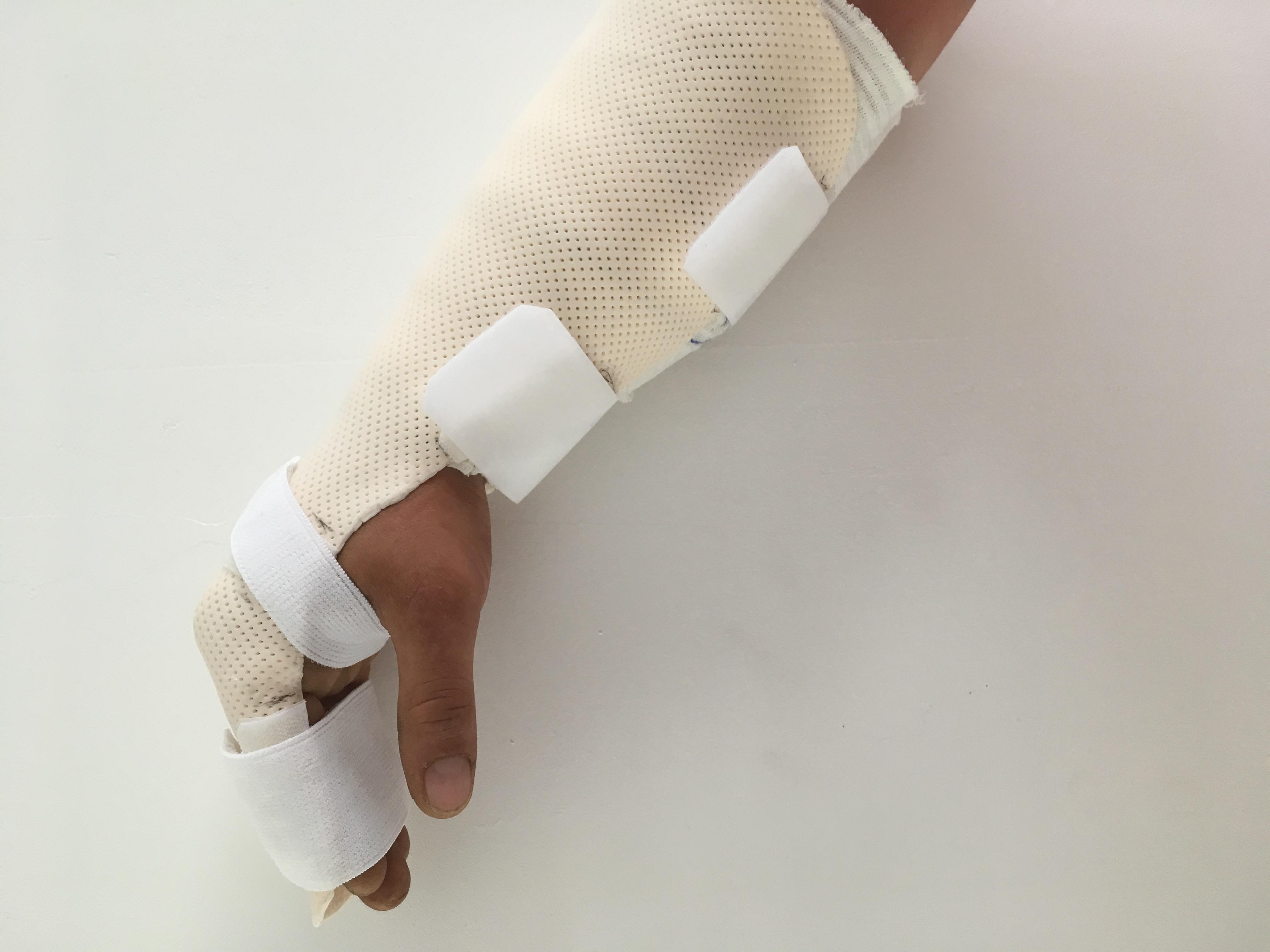 Orthèse de main 9