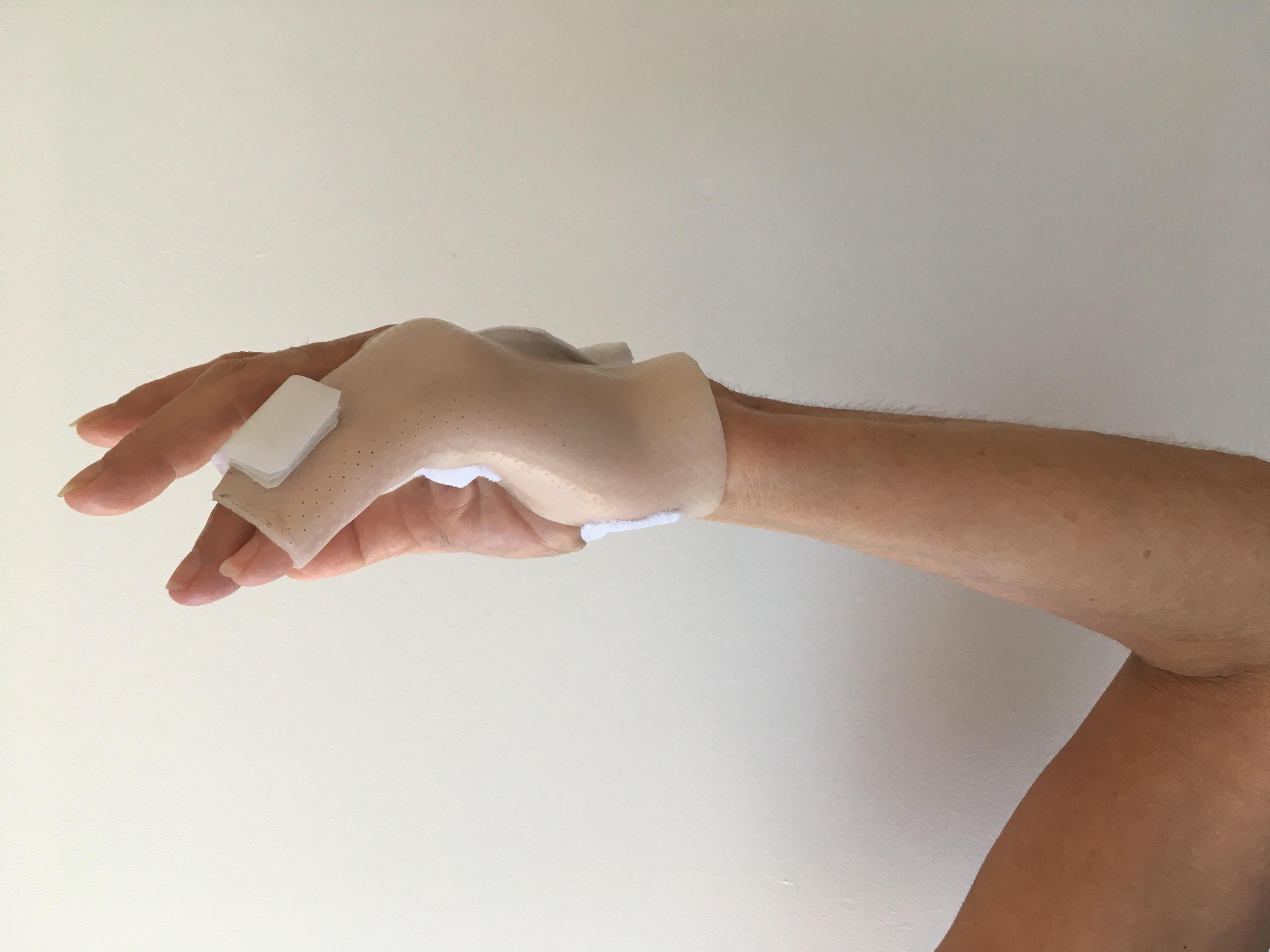 Orthèse de main 4