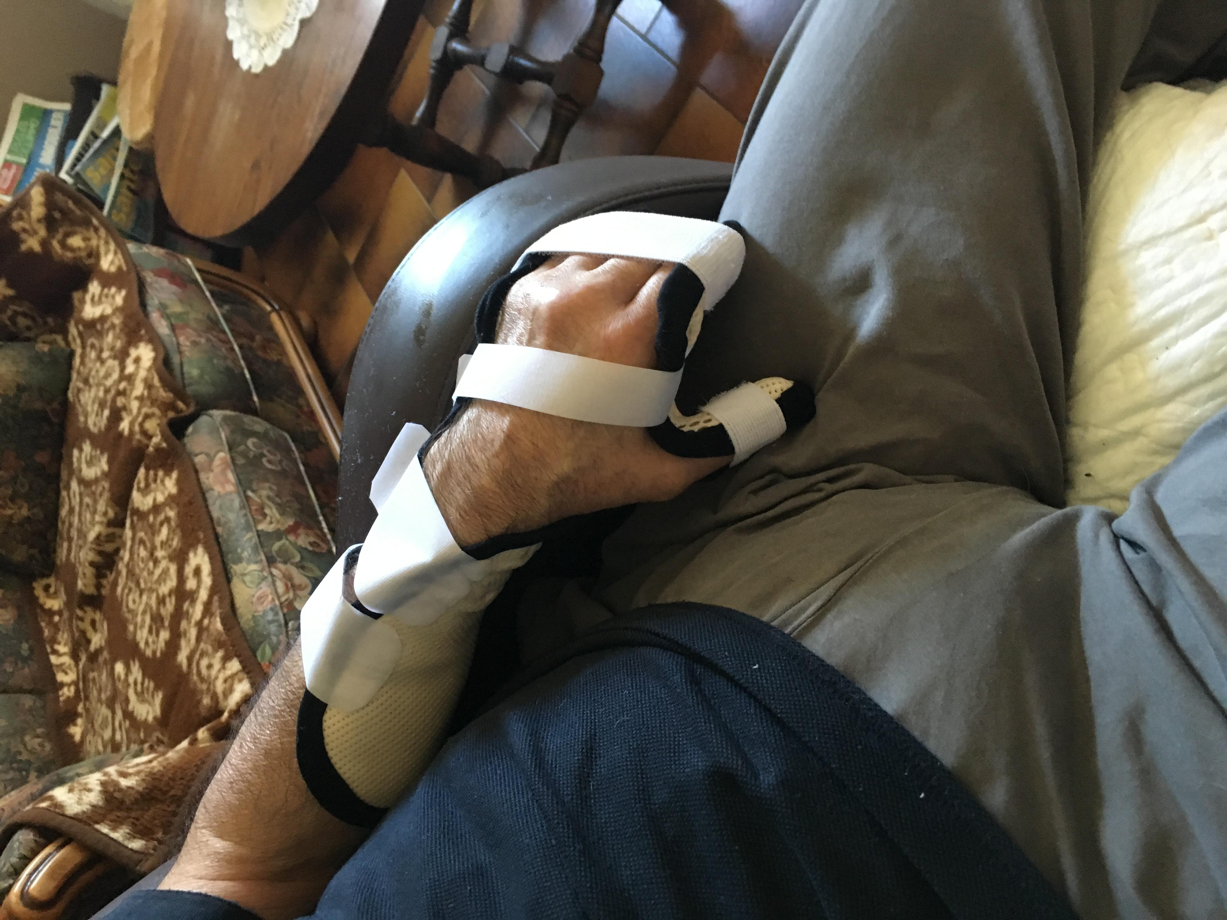 Orthèse de main 11