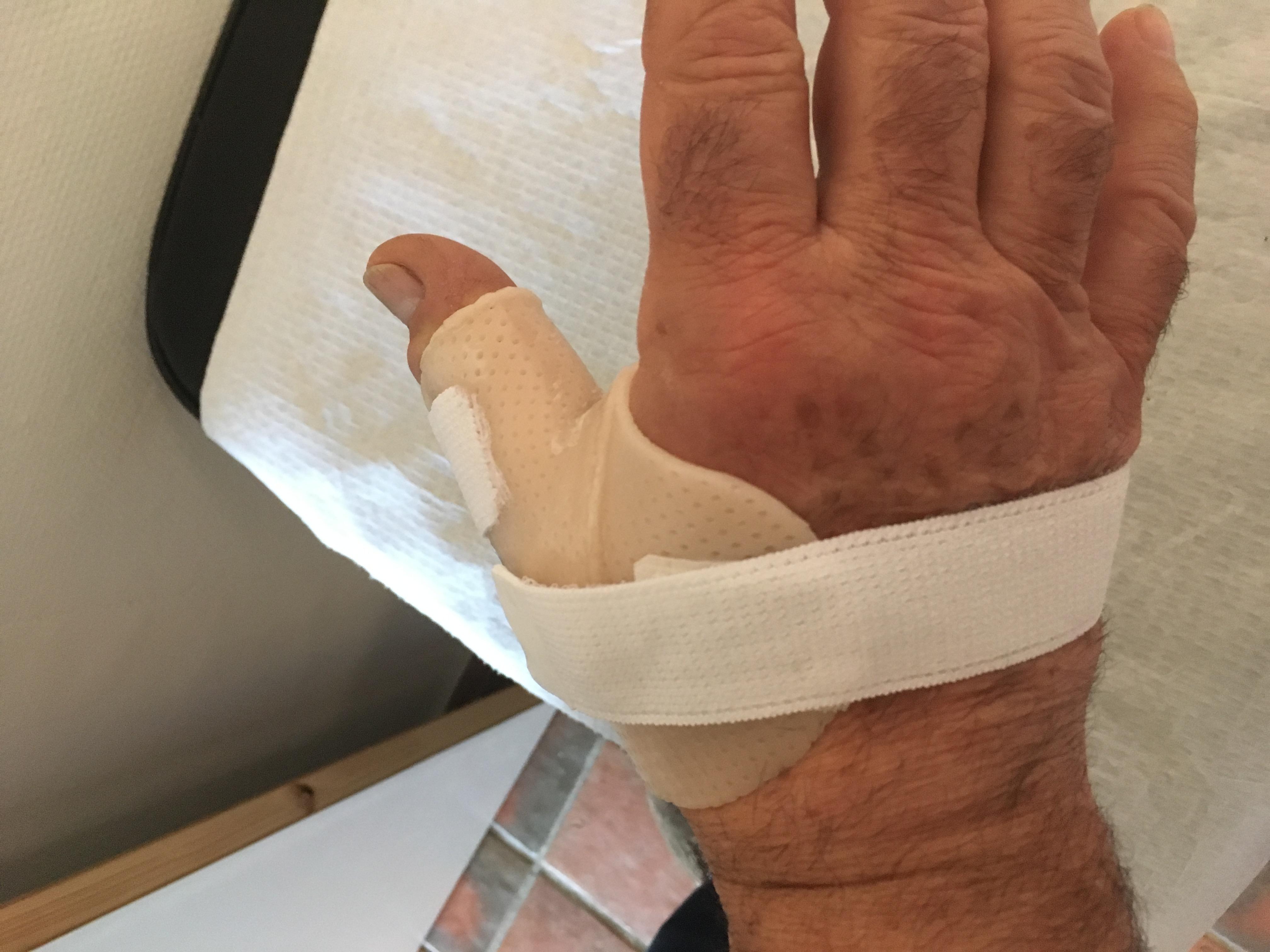 Orthèse de main 16