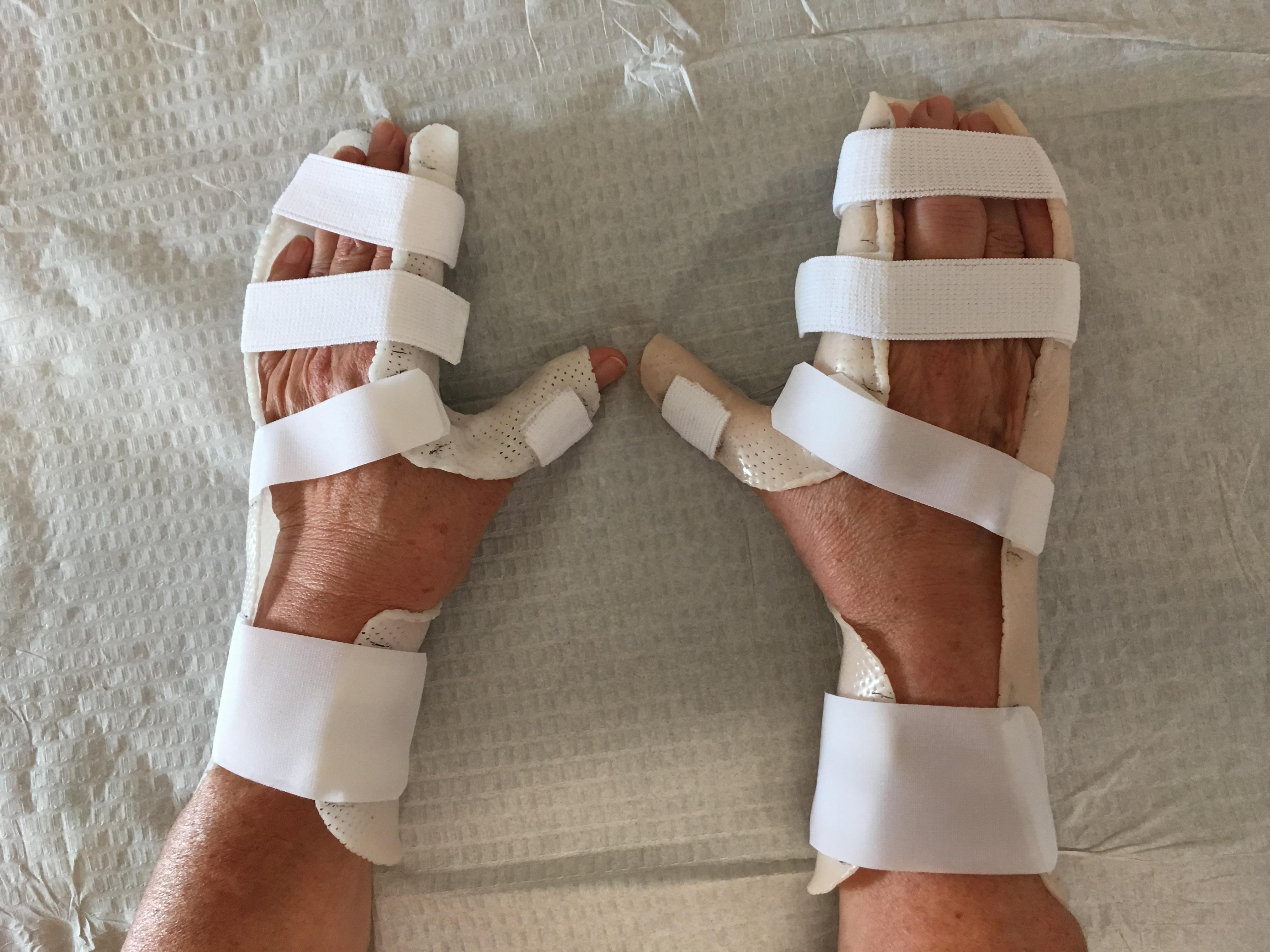 Orthèse de main 1