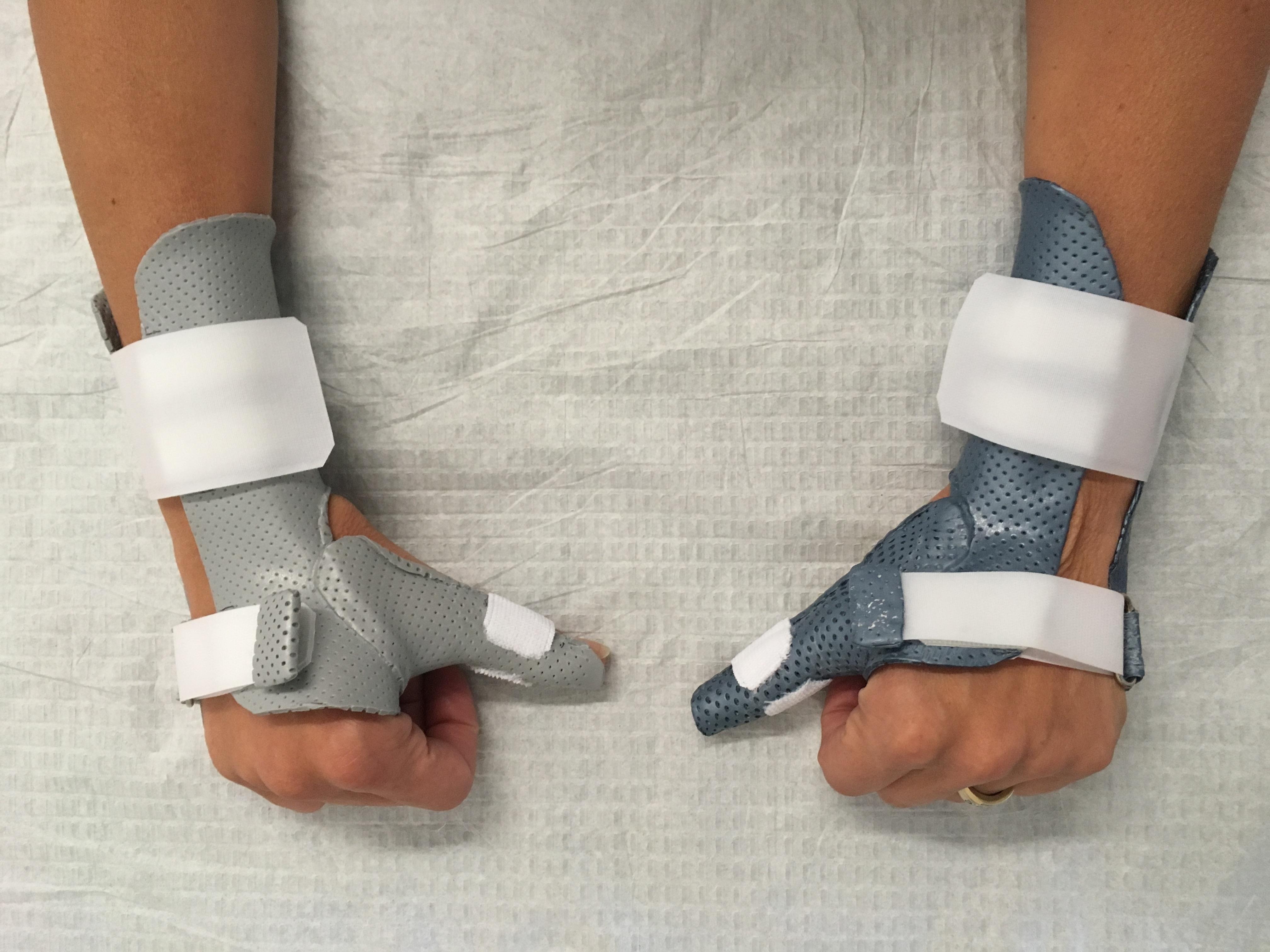 Orthèse de main 14