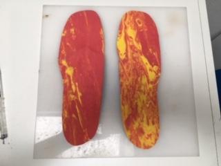 semelles orthopédiques pour pied varus ou genuvarum fait près de Tours par un podologue orthésiste.